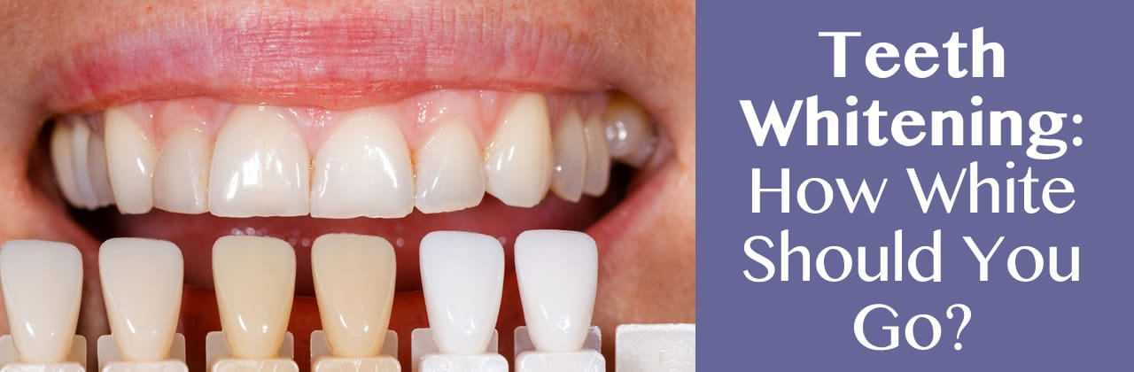 Teeth Whitening In Newton MA: How White Should You Go?